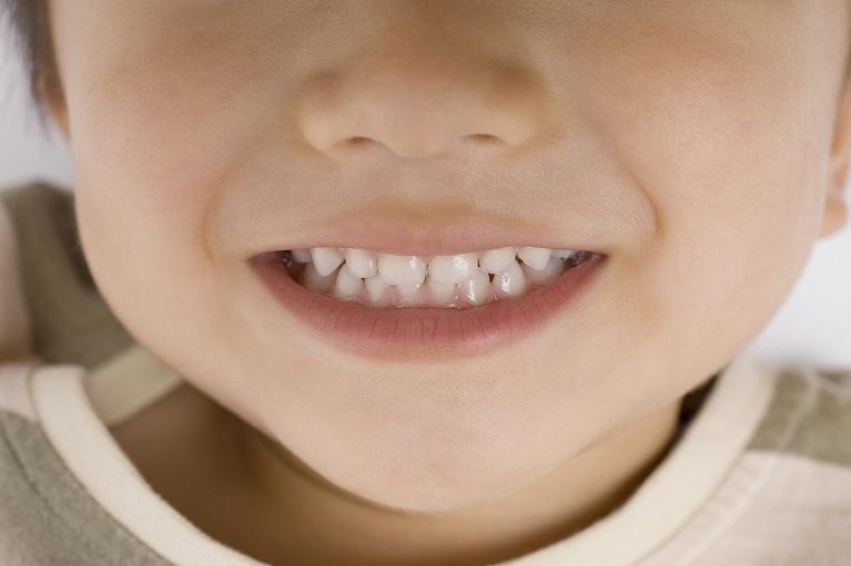 矯正歯科のご紹介